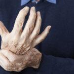 Detener la artrosis